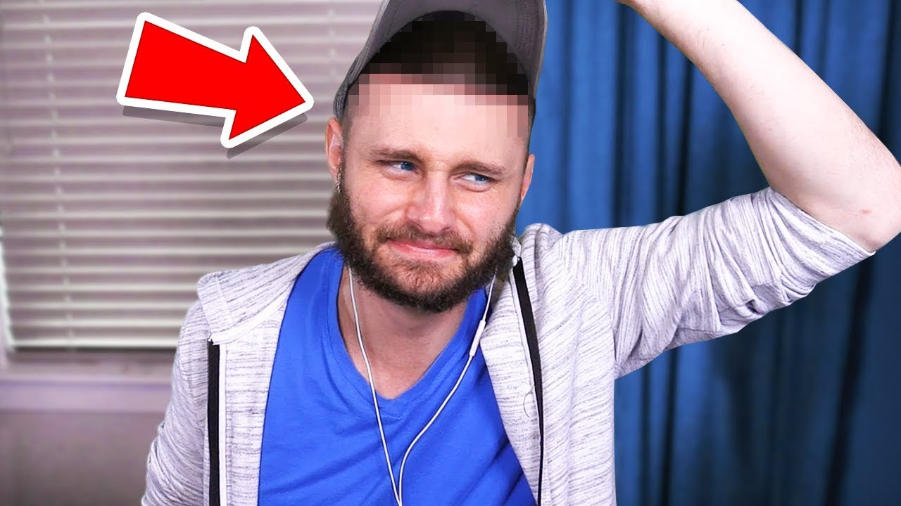 What happened with my HEAD SURGERY... HD quality image